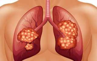 Стадии развития туберкулеза легких
