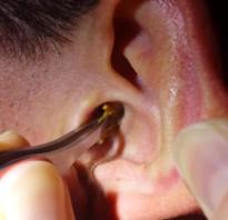 Пробка в ухе лечение