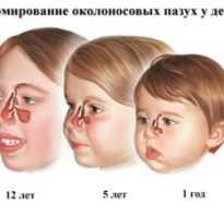 Симптомы гайморита у ребенка 3 лет