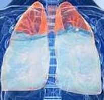 Жидкость в легких диагноз