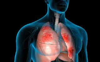 Температура при пневмонии 37 у взрослых