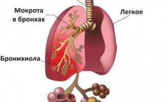 Лечение двухсторонней пневмонии