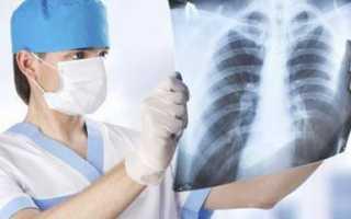 Легко ли заболеть туберкулезом