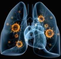 Пневмония и анализ крови