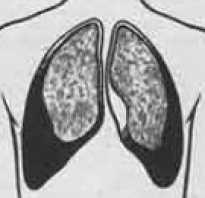 Лечение сухого плеврита