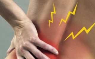 Симптомы застуженной спины