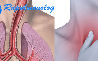 Чем лечить трахейный кашель