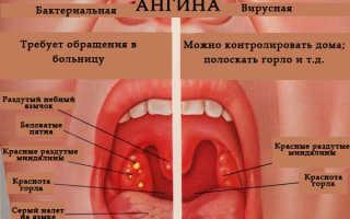 Лекарство при тонзиллите