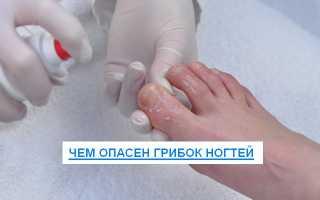 Грибок ногтей если не лечить