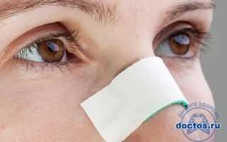 Признаки перелома носа