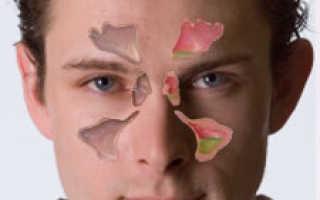 Как самостоятельно диагностировать гайморит