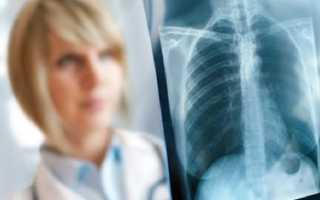 Симптому туберкулеза