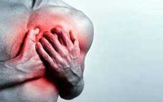 Межреберная невралгия причины симптомы