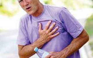 Межреберная невралгия лечение препараты