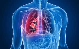 Как долго развивается рак легких