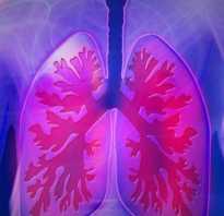 Умирают ли от воспаления легких