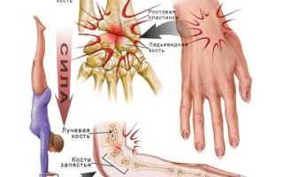 Растяжение кисти руки симптомы