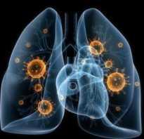 Осложнение на сердце после пневмонии