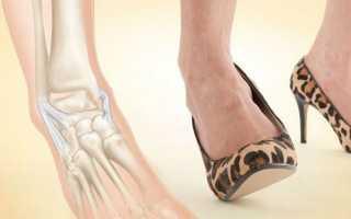 Первая помощь при растяжении ноги