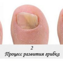 Лечение грибок ногтя