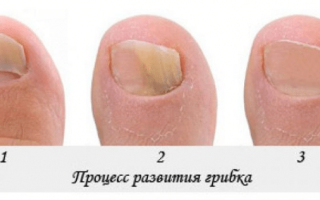 Лечение грибка ногтей дома