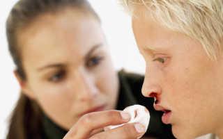 Что делать если носом пошла кровь