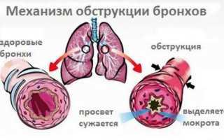 Симптомы бронхита у взрослого без температуры