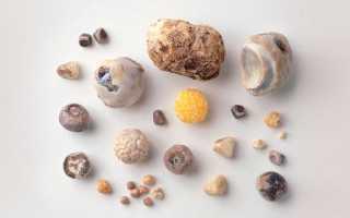 Как выходят камни из желчного пузыря симптомы