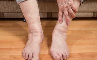 Боли в суставах ног лечение народными средствами