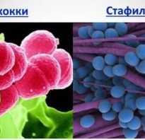 Стафилококк и стрептококк симптомы