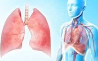 Лечение воспаление легких в домашних условиях