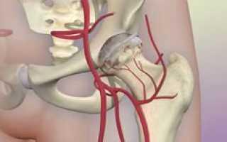 Причины боли в бедренном суставе
