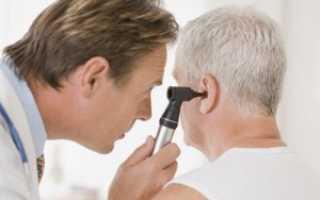 Неврит слухового нерва медикаментозное лечение