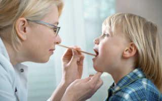 Причины ларинготрахеита у детей