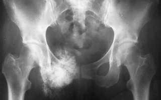 Саркома тазобедренного сустава симптомы