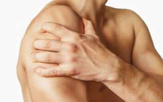 Что делают при вывихе плеча