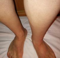 Тяжелые ноги по утрам