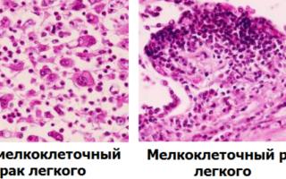 Рак легкого мелкоклеточный и немелкоклеточный