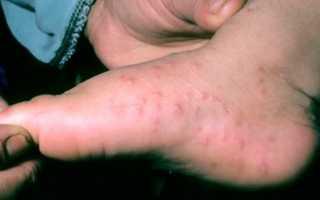 Холодовая аллергия на ногах
