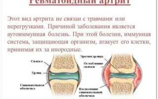 Почему подкашиваются ноги в коленях