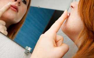 Быстрое средство от простуды на губах